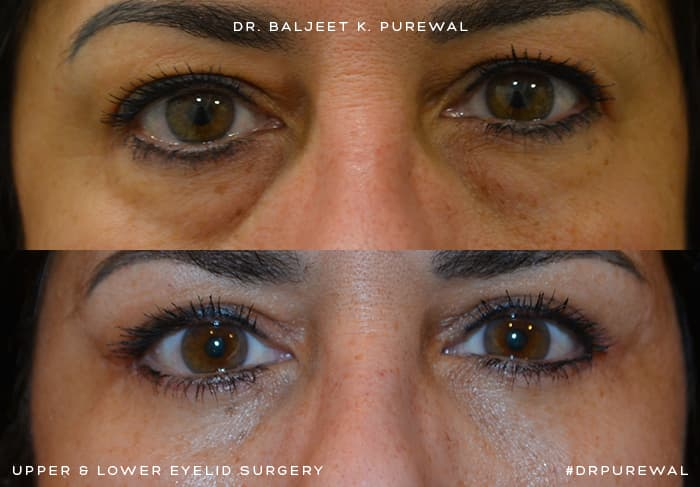 Upper & Lower Eyelid Surgery (Blepharoplasty) Before & After Photo. Surgery by Dr. Baljeet K. Purewal (Oculoplastic Surgeon) in New Jersey.