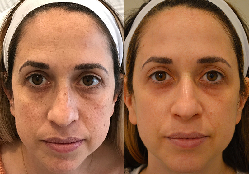 BBL Photofacial Before & After Photo. Procedure performed by Dr. Baljeet K. Purewal (Oculoplastic Surgeon) in New Jersey.
